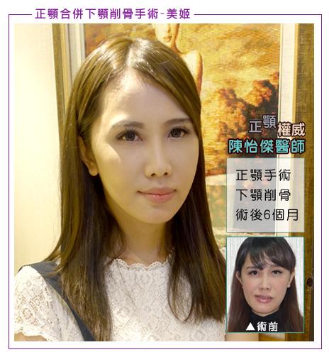 陳怡傑正顎合併削骨案例美姬,術後半年