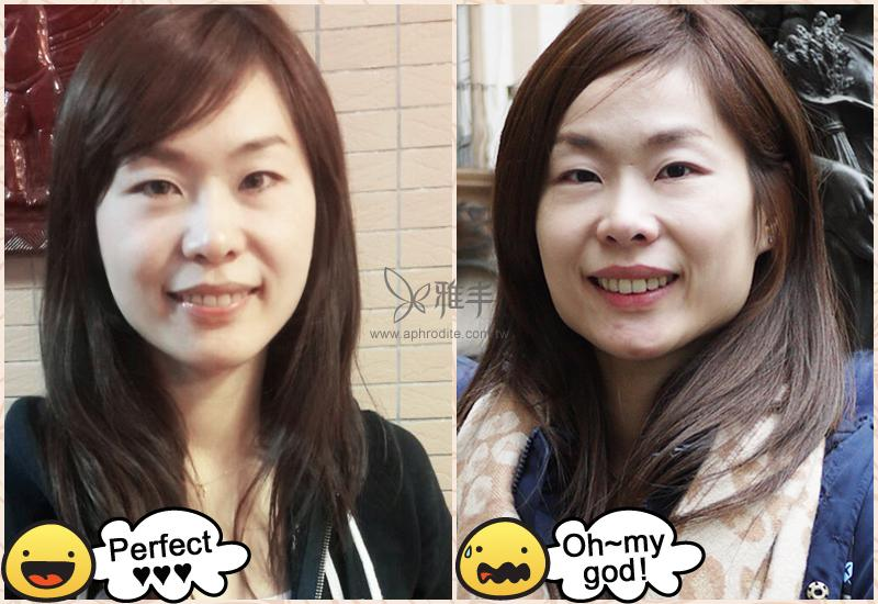 瘦小臉推薦,微整形,肉毒桿菌,咀嚼肌,國字臉,雅丰診所